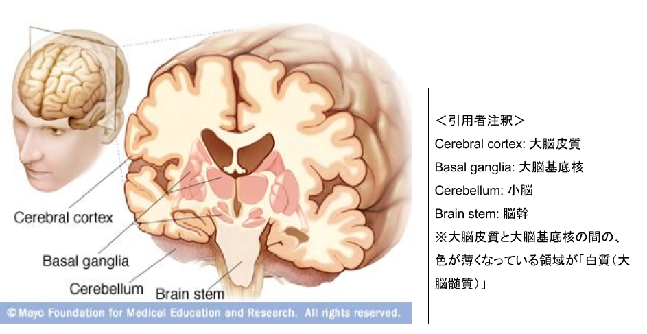 "(mayoclinic.org ""cause-of-supranuclear-palsy""より)"